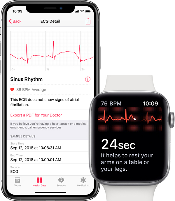 Apple watches beside iPhone demonstrating how the ECG feature works.